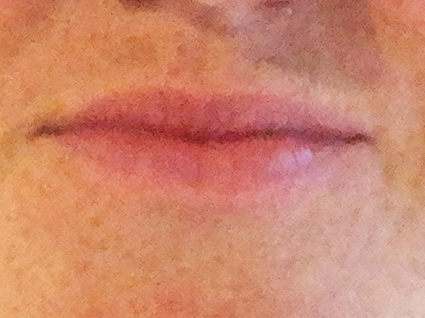 Frontal view lips before