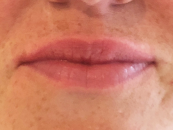 Frontal view lips after treatment by Dr Lawson with Restylane Kysse filler