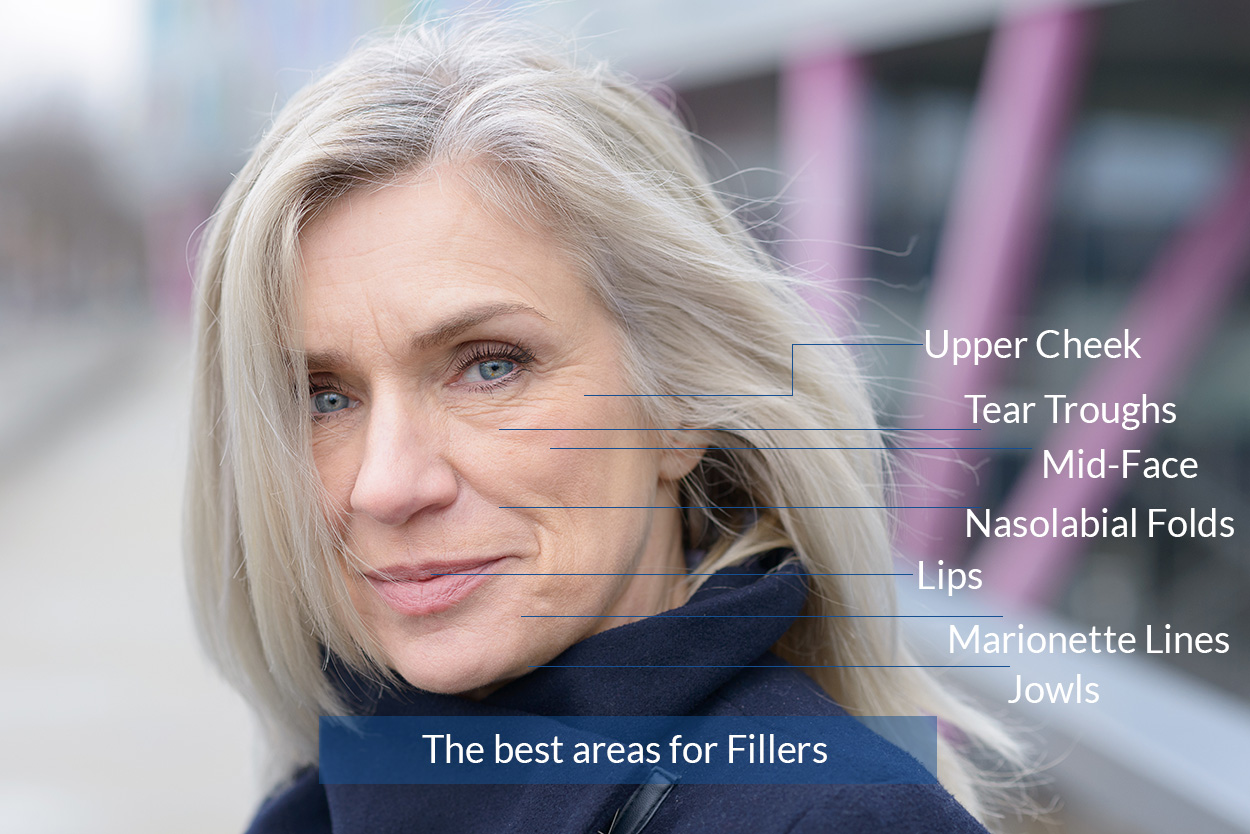 The best areas for Fillers